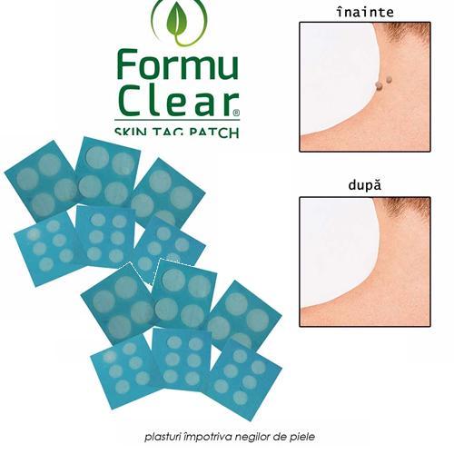 FormuClear - 2  seturi de plasturi